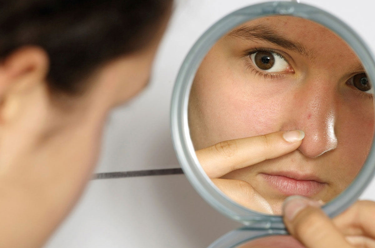 6 Easy Ways To Get Rid Of Taunting Blackheads - Beyond Pink